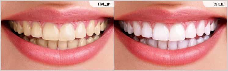 Избелване на зъби (преди-след), D.S.Dent Дентална клиника